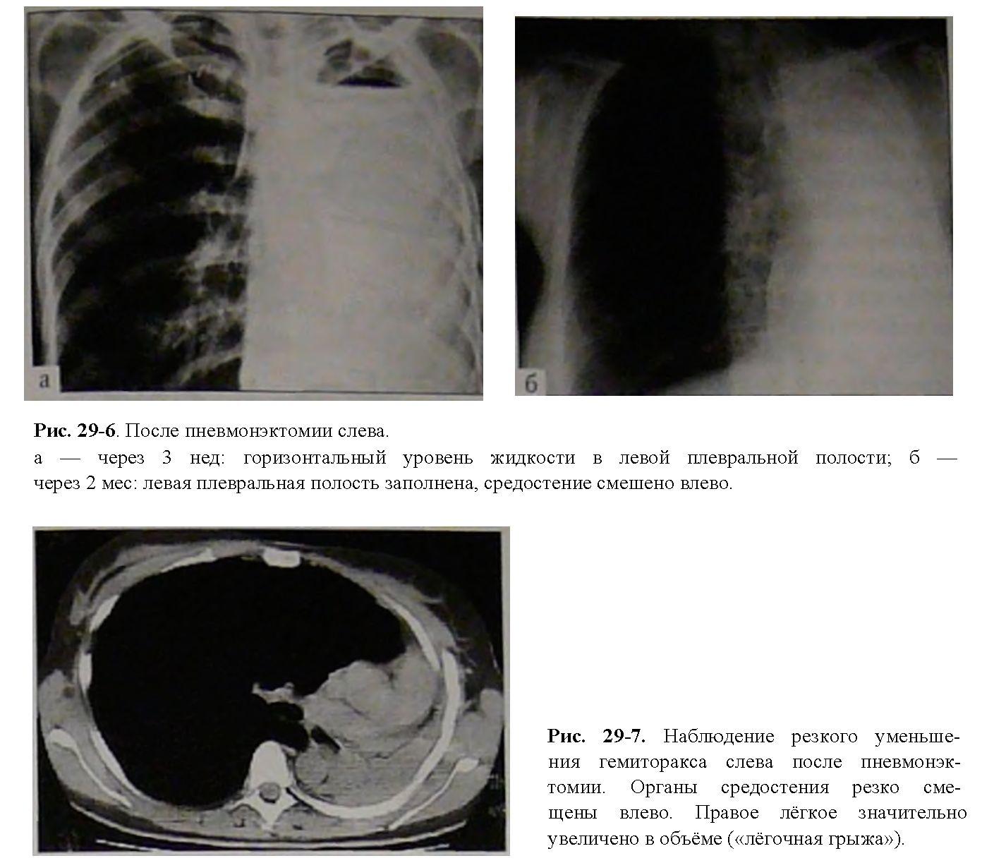Пневмонэктомия фото